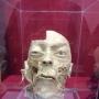 Экспозиция анатомии и патологии человека из Кунсткамеры (6+)